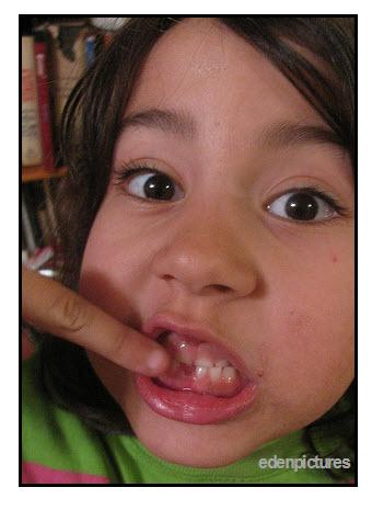 Teeth: Anatomy and Development